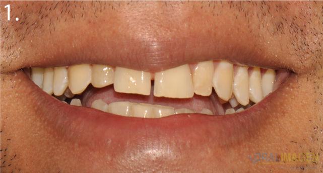 Diseño de Sonrisa Digital DSD