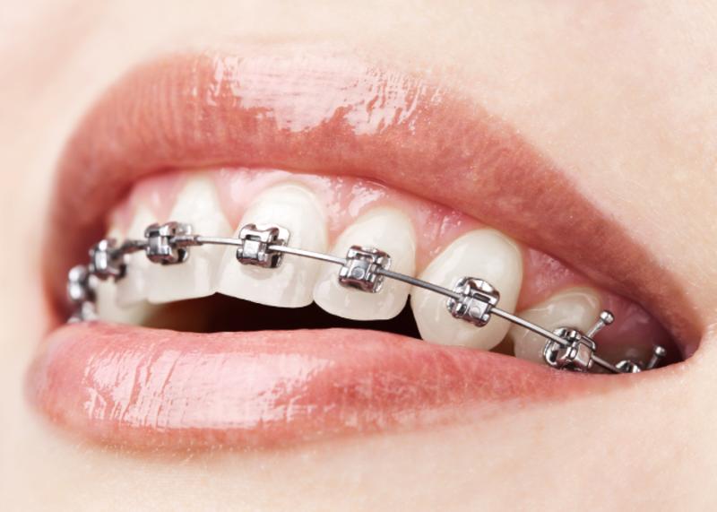 Ortodoncia con Mini Brackets