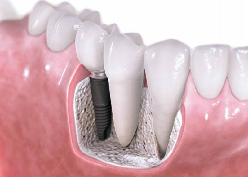 Testimonio de Implantes