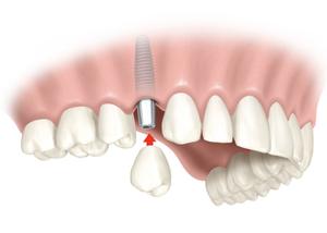 Implantes de carga Inmediata