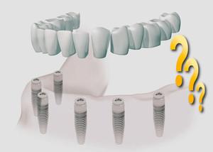 Preguntas frecuentes de implantes dentales