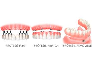 Tipos de Protesis