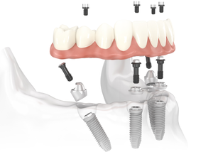 Implantes All on Four