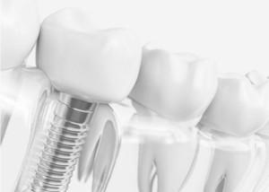 Implantes dentales según tus condiciones óseas y clínicas