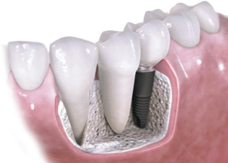 Implantes Técnica Tradicional