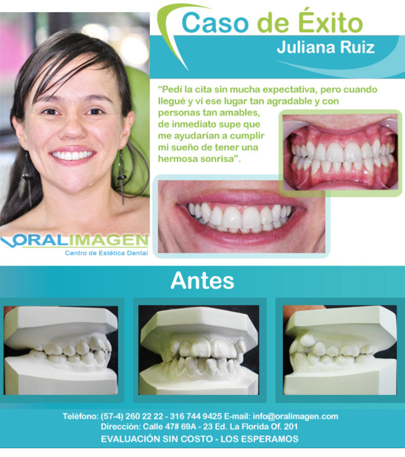 Caso de Éxito - Ortodoncia